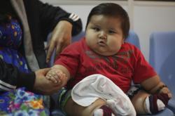 Dětská obezita