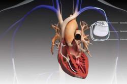 Kardiostimulátor