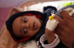 Dítě s malárií v Jemenu