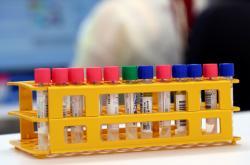 Laboratoř zkoumající koronavirus ve Švýcarsku