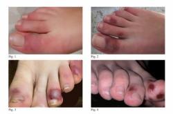 Covidové prsty