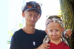 Děti s progerií