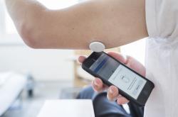 Senzor pro kontinuální monitoring hladiny cukru v krvi