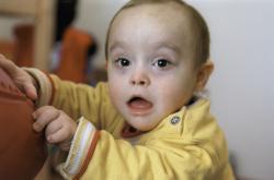 Dítě s Dovnovým syndromem