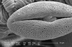 Pylové zrno pupalky pod mikroskopem