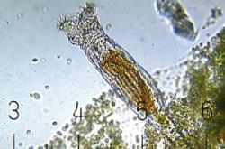 Pijavenka pod mikroskopem, ilustrační foto