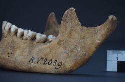 Dolní čelist prvního známého muže s morem