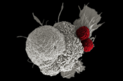 Rakovinná buňka dutiny ústní (bílá), na kterou útočí dva T-lymfocyty (červené)
