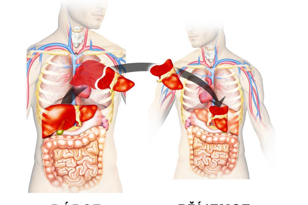 Transplantace obrácených orgánů