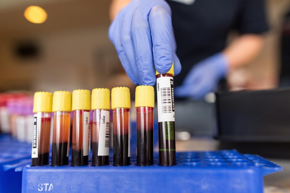 Krevní vzorky