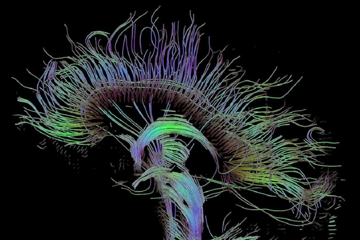 Scan mozku