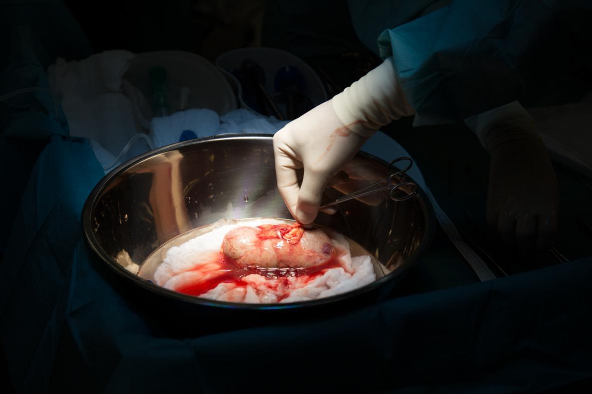 Ledvina určená k převozu a transplantaci