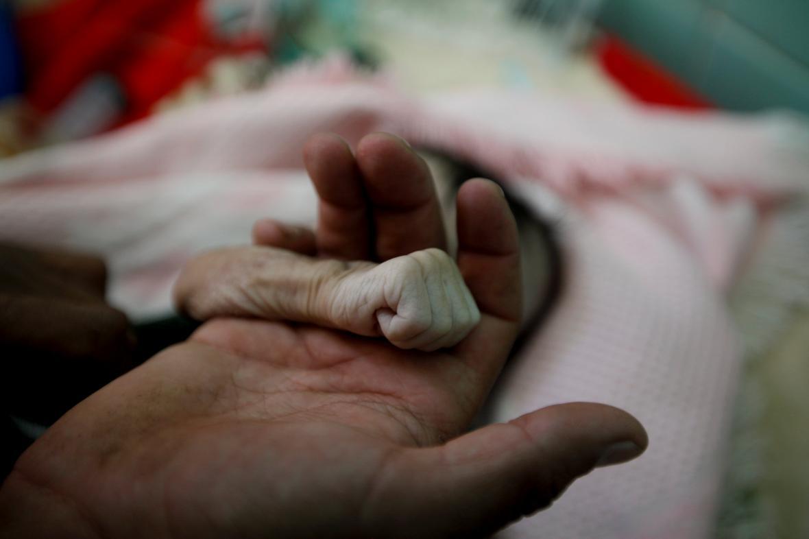 V Jemenu umírají hlady i děti