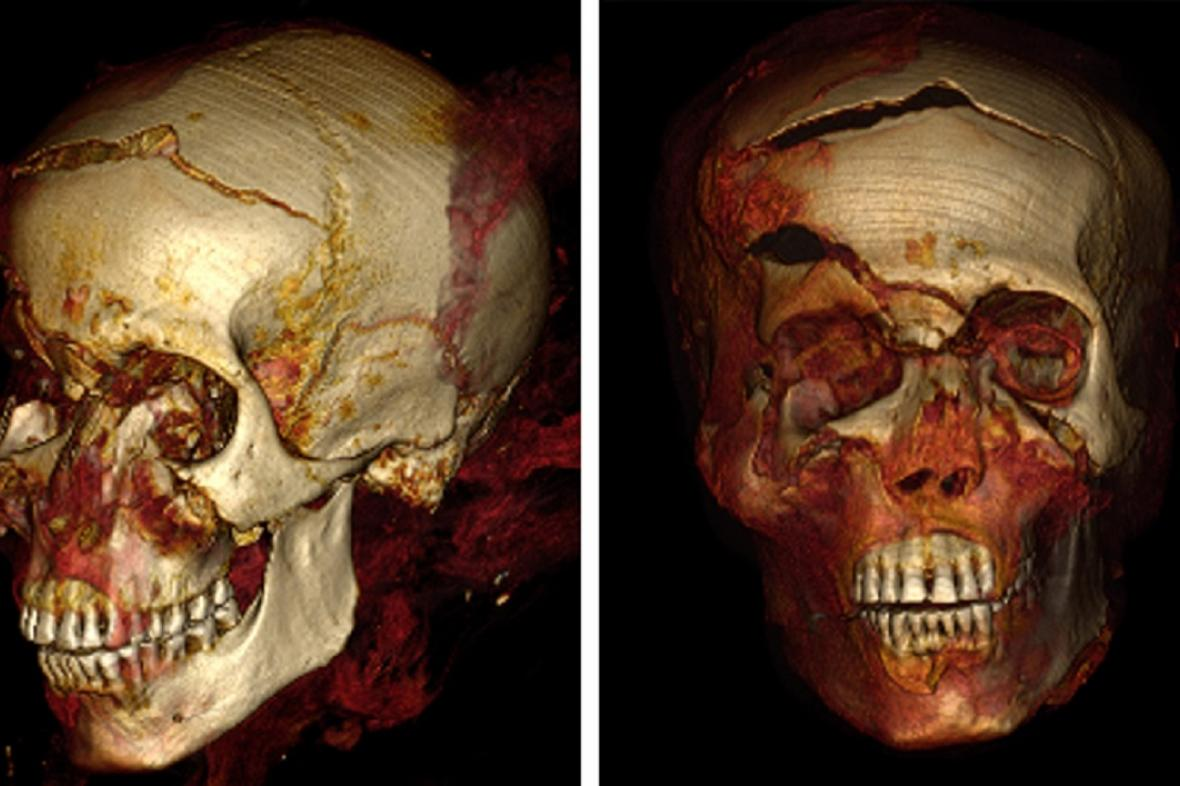 CT snímek lebky faraona Sekenenre Tao