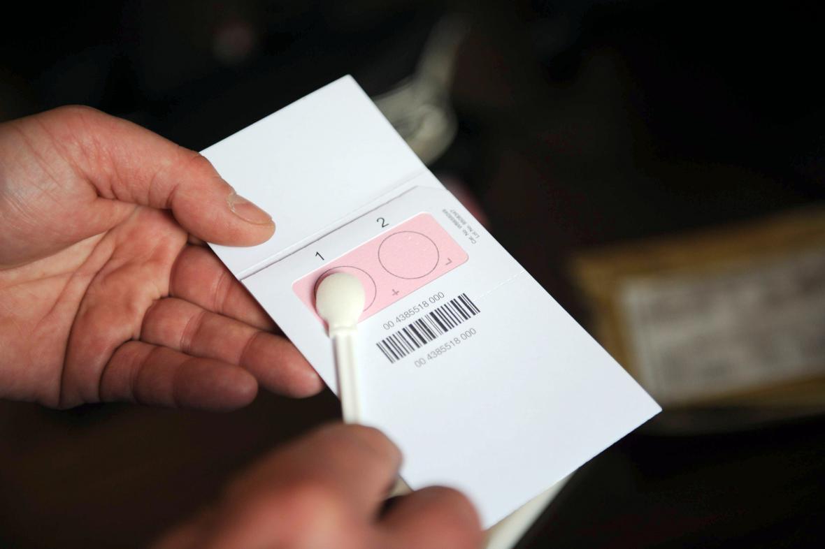 Test DNA má pomoci dopadnout násilníka