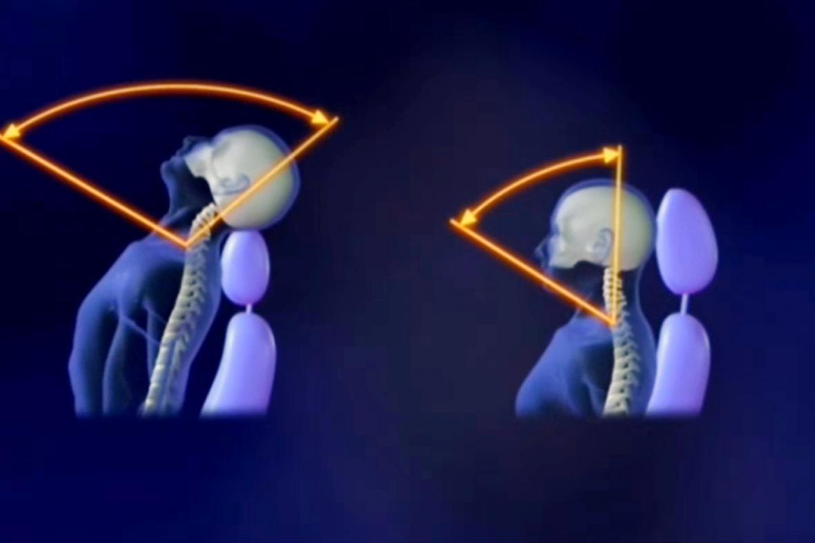 Pohyb hlavy při špatně nastavené opěrce