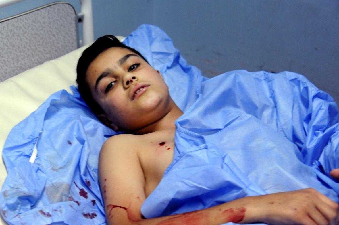 Zraněný syrský chlapec