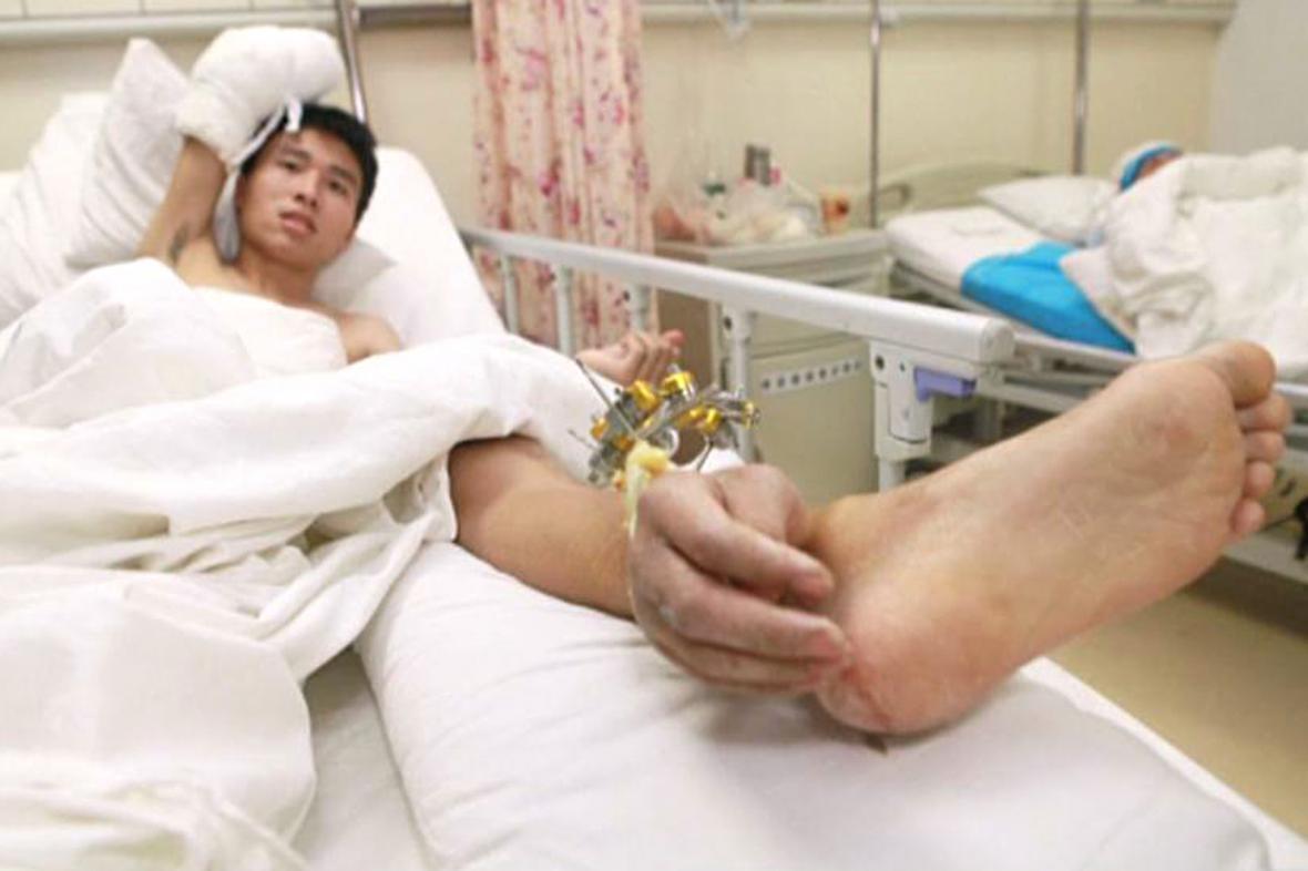 Sie Wej s rukou přišitou k noze