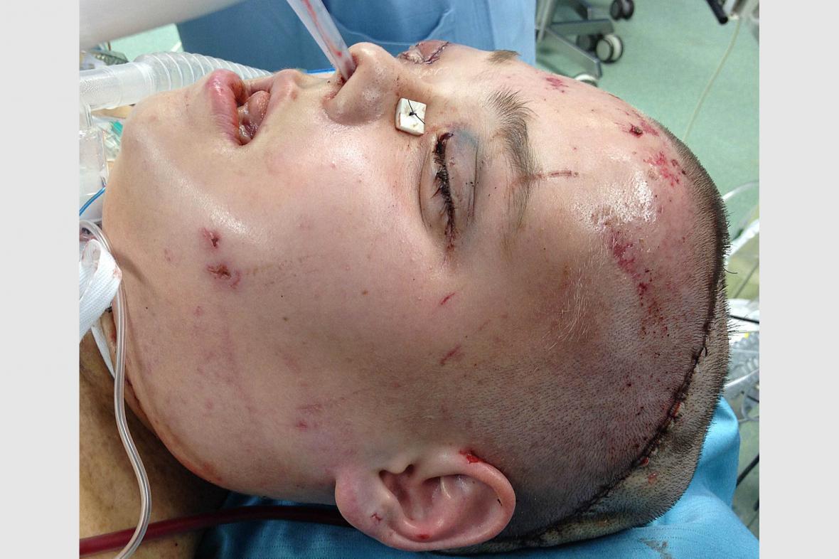 Polka Joanna po transplantaci obličeje