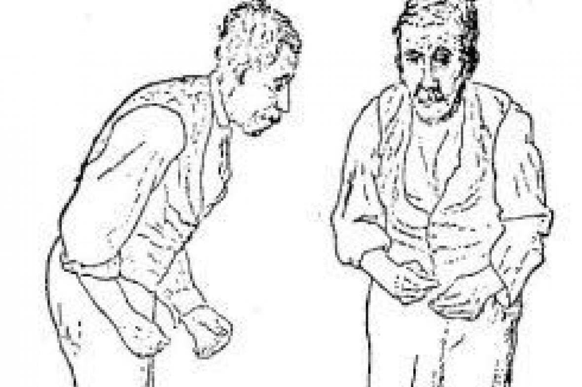 Ilustrace Parkinsonovy choroby