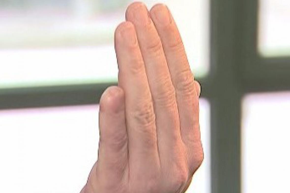 Ukousnutý prst