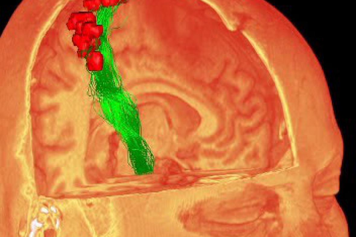Trojrozměrný obraz mozku