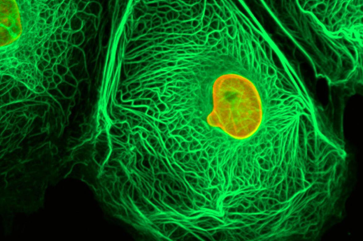 Rakovinná buňka