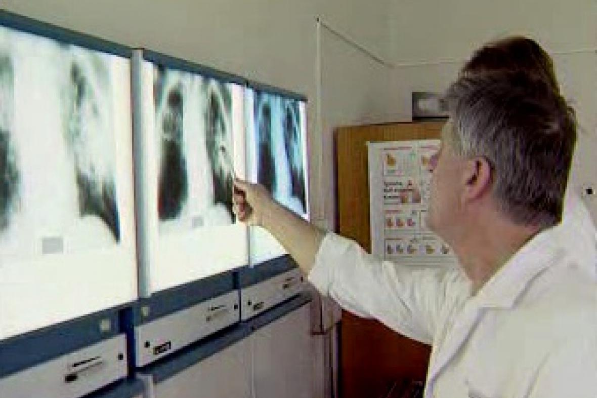 Vyšetření TBC