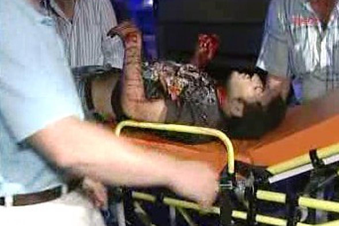 Oběť pumového útoku