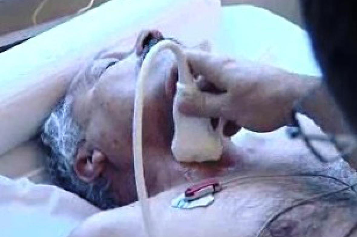 Preventivní vyšetření ultrazvukem
