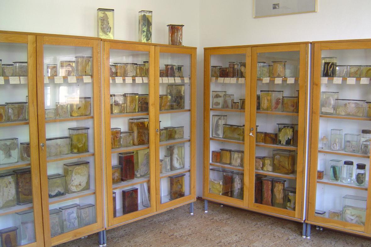 Muzeum patologie v Opavě