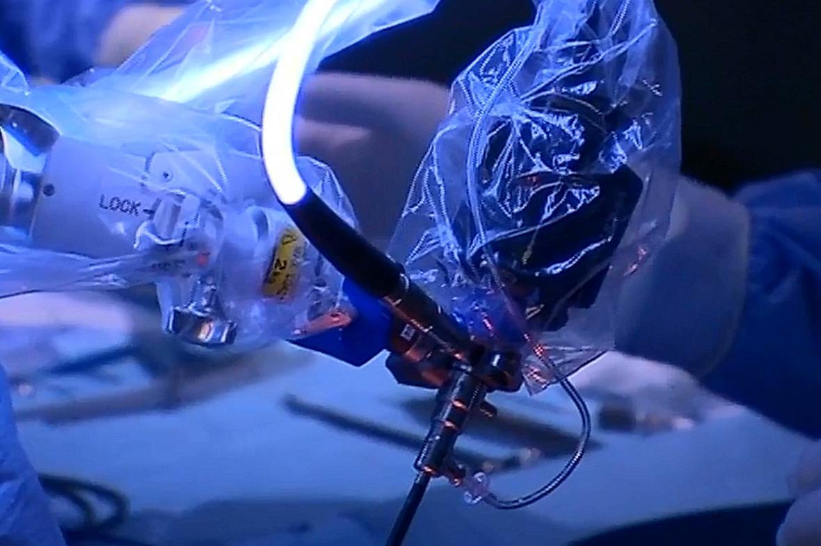 3D endoskop ve FN Ostrava