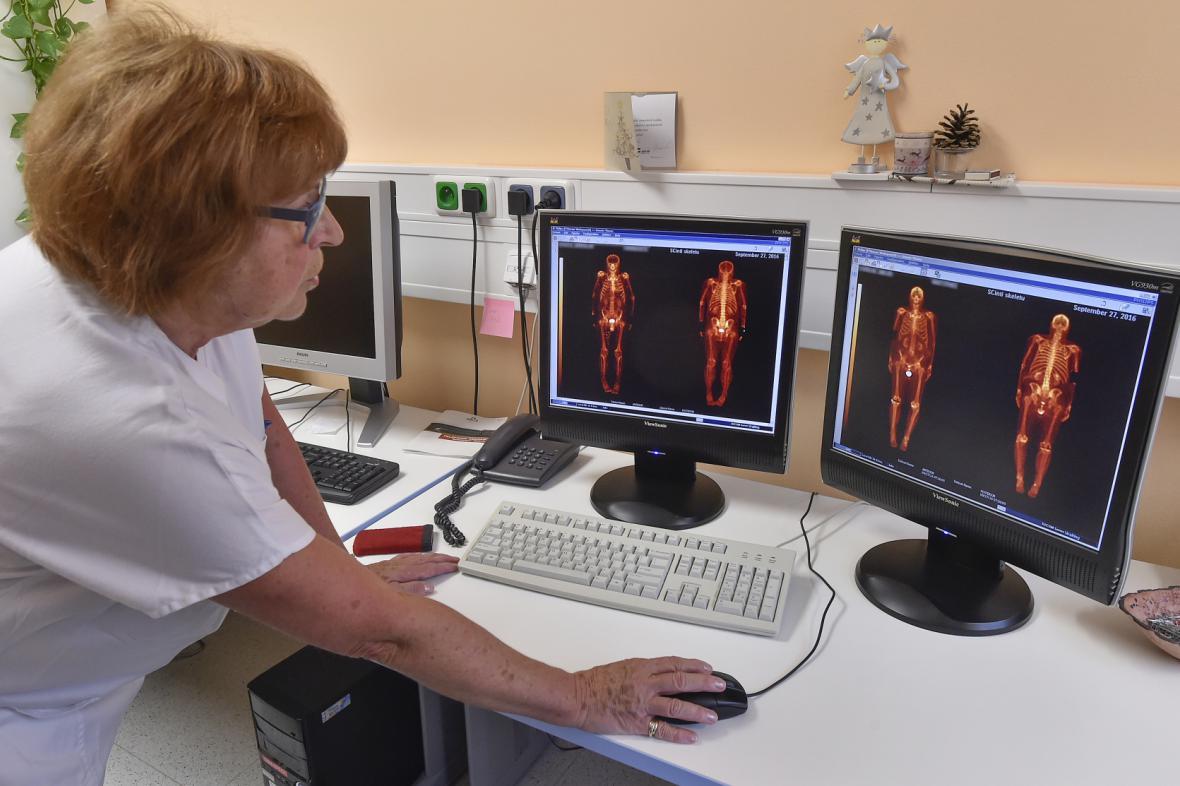 Vyhodnocení pozitronové emisní tomografie. Ilustrační foto