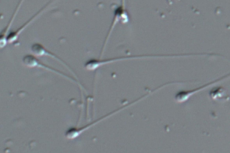 Spermie pod mikroskopem