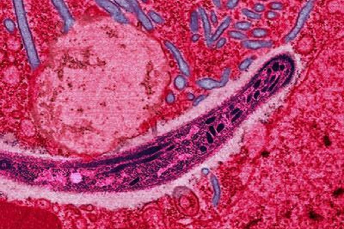 Prvok Plasmodium, který způsobuje malárii