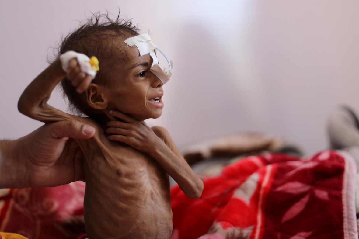 Podvyživené dítě v nemocnici v Saná