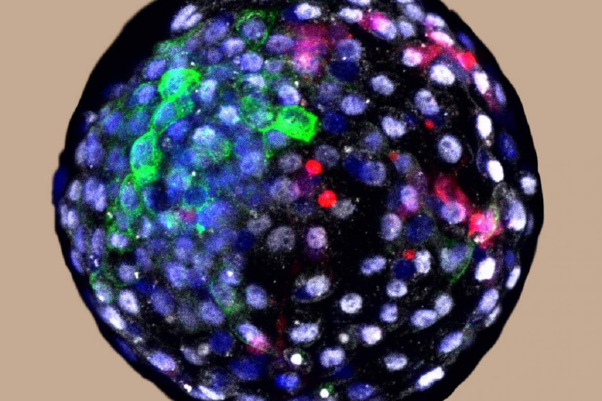 Lidsko-primátí embryo