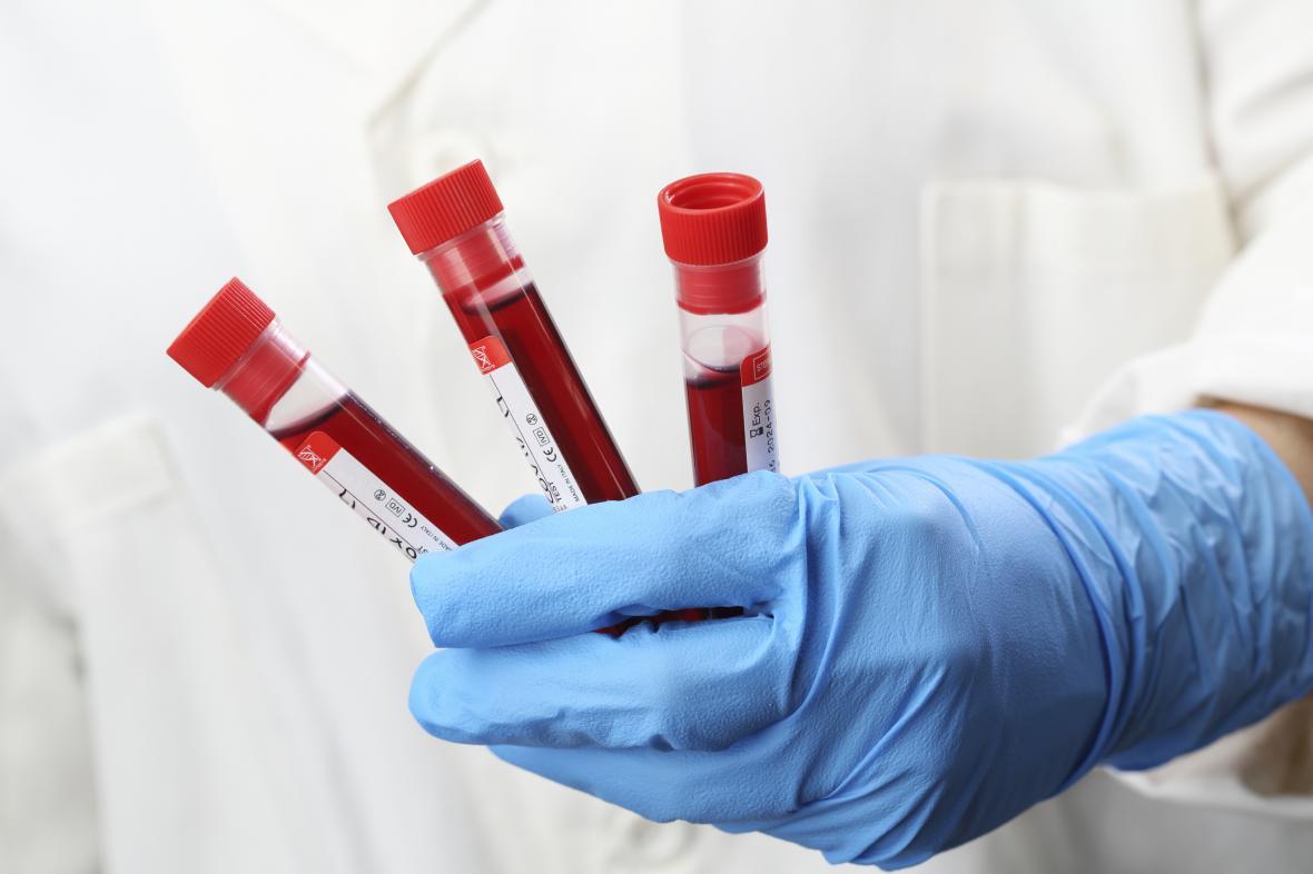 Testování krve