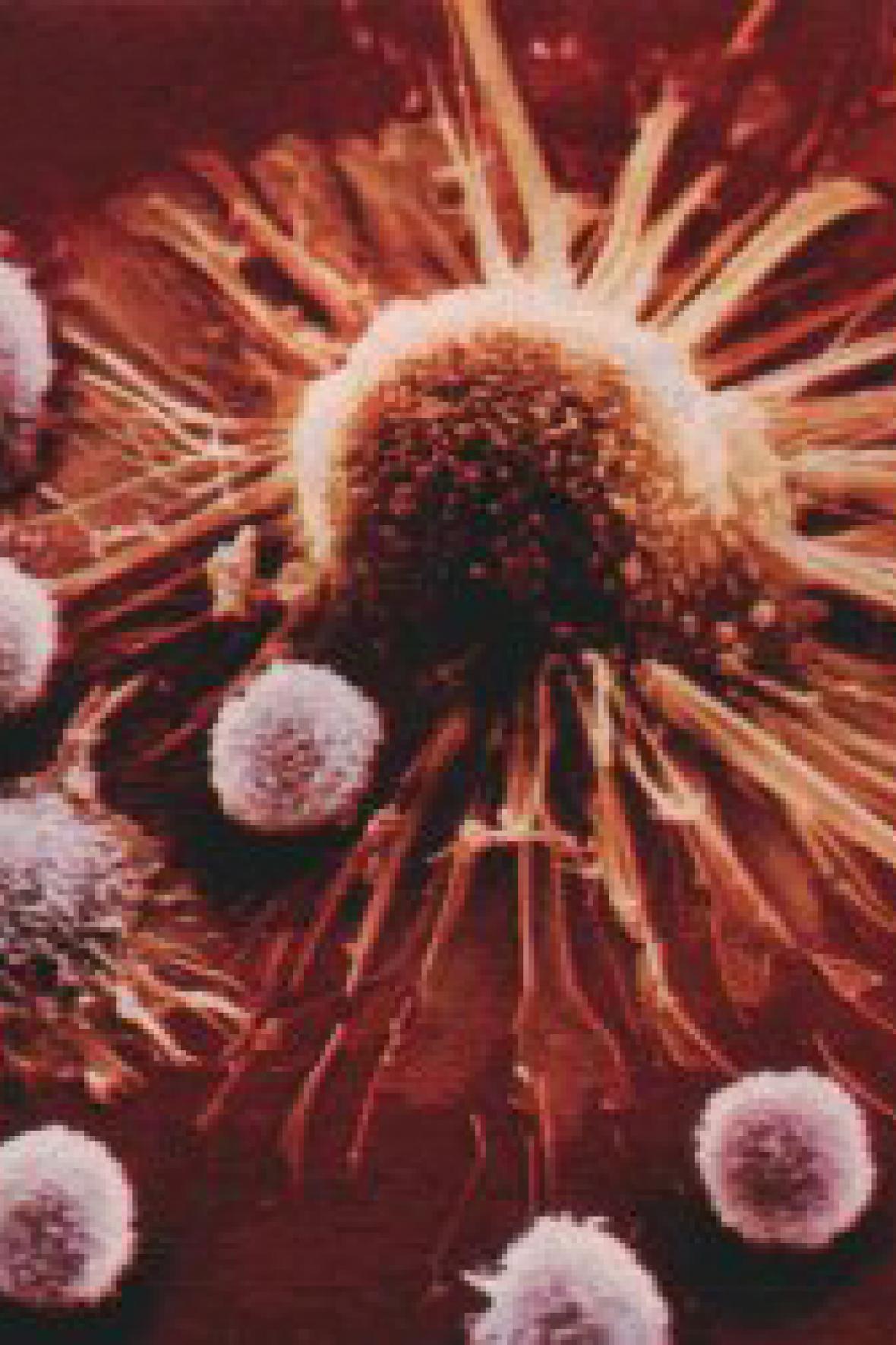 Rakovinná buňka napadená imunitním systémem