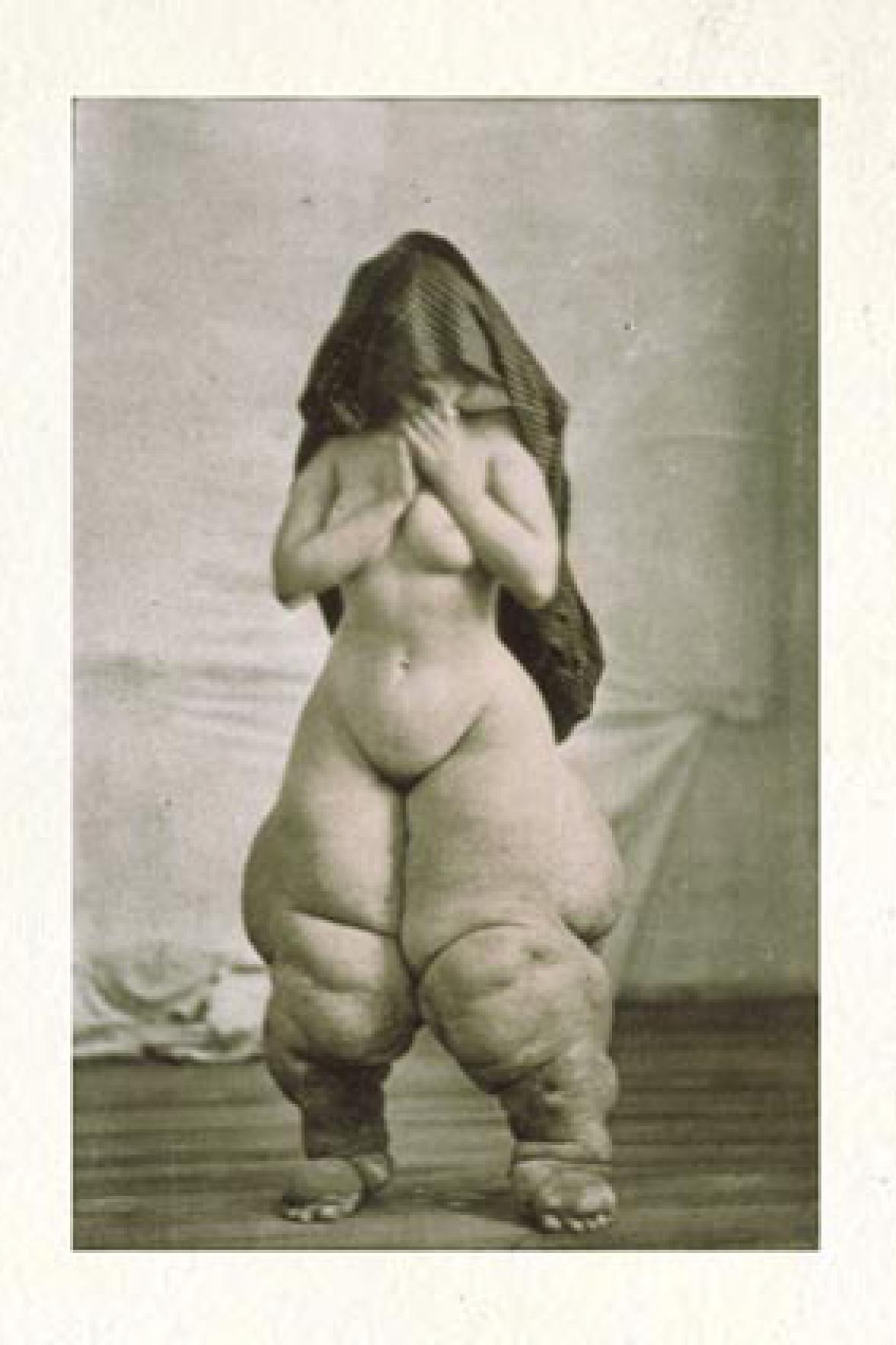 Žena trpící elefantiázou