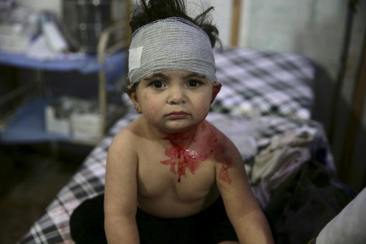 Dětské oběti syrské války