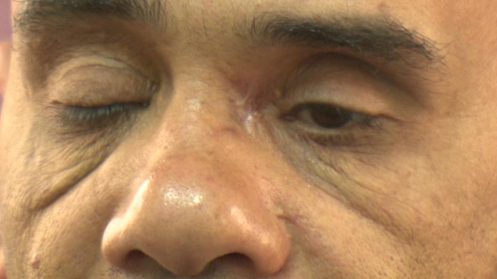 Luaj Abíd se stále dostává ze zásahu policejním projektilem