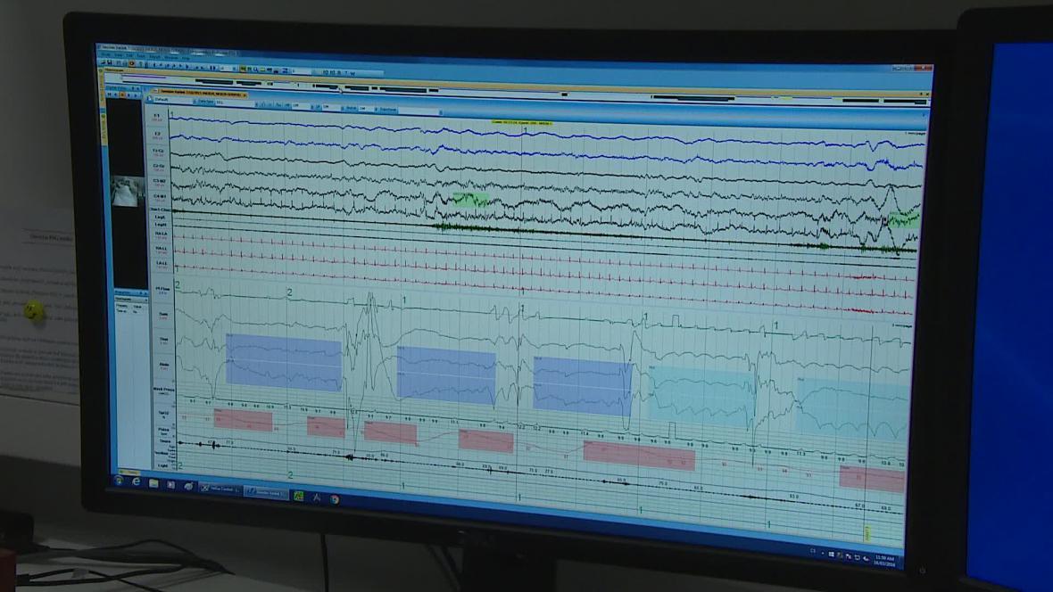 Nemocní přestávají dýchat na desítky sekund