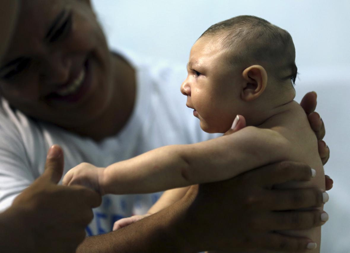 Brazilské dítě postižené mikrocefalií