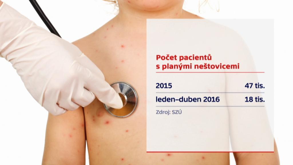 Počet pacientů s planými neštovicemi