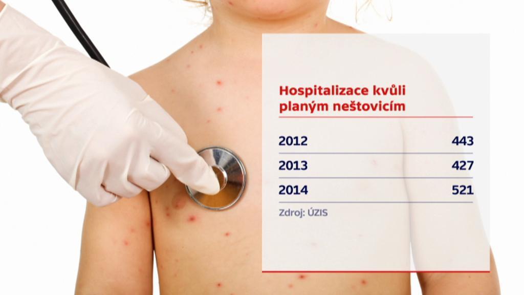 Hospitalizace kvůli planým neštovicím