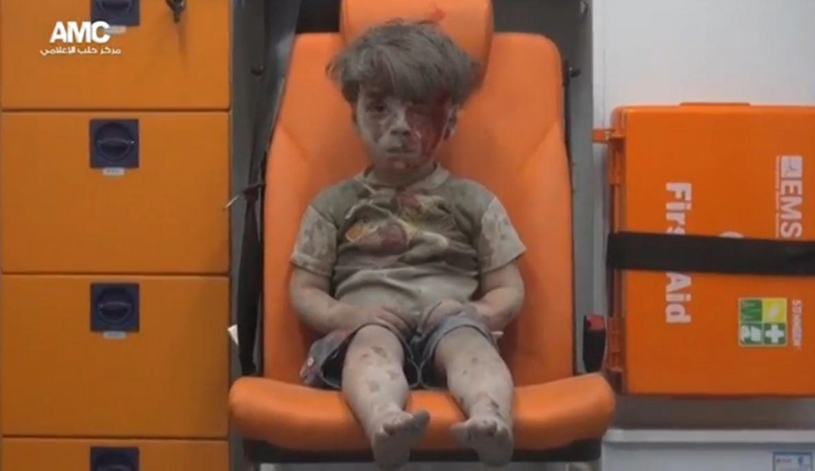 Zraněný Omar z Aleppa