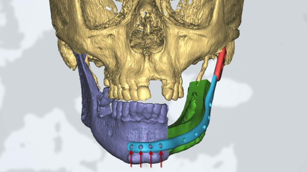 Rekonstrukce čelisti napadené rakovinou pomocí 3D technologie – cílový stav je označený zeleně