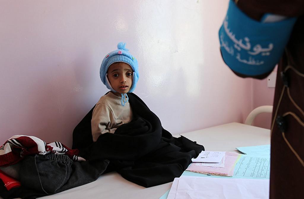 Podvyživené dítě v Jemenu