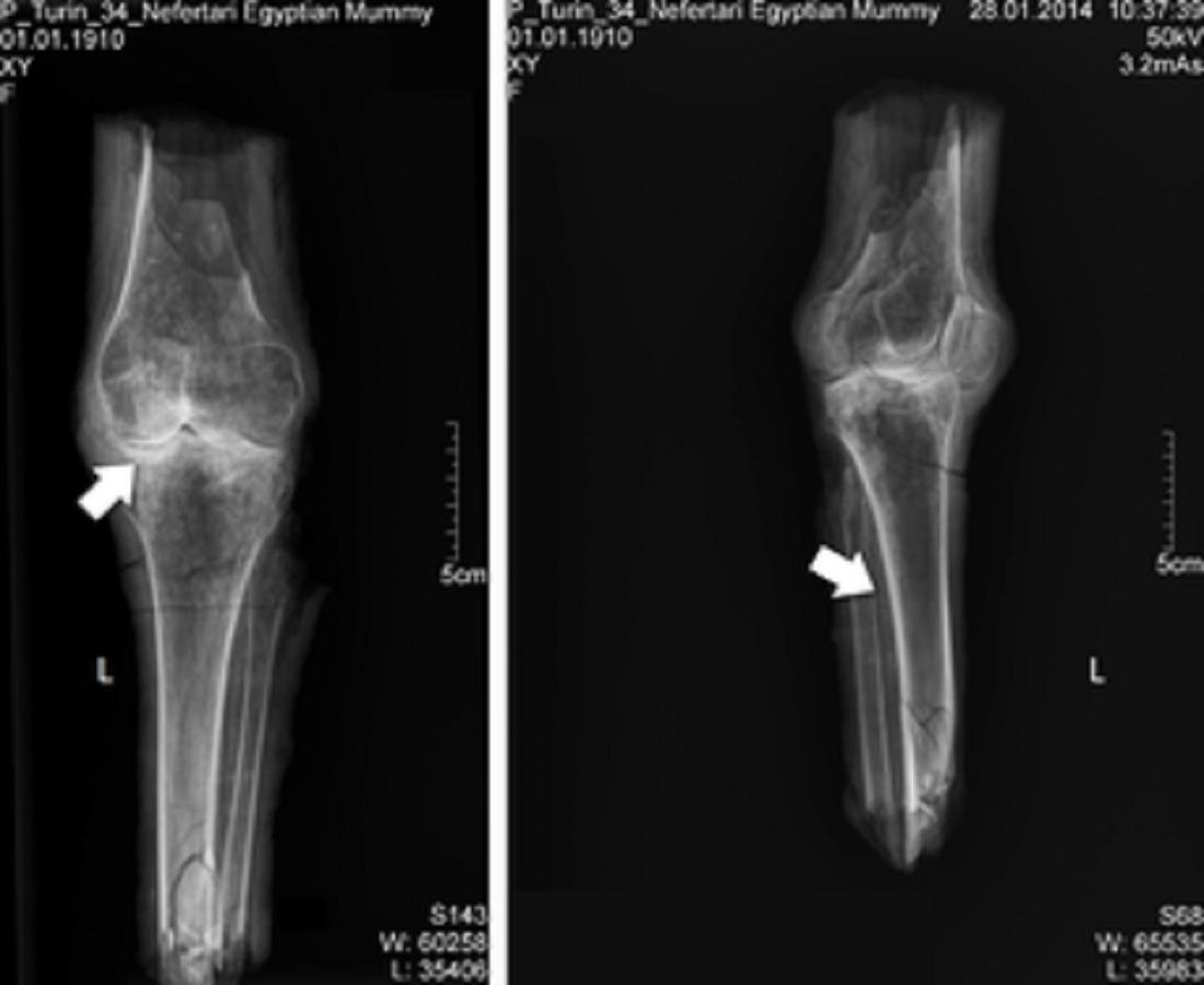 Rentgen nohou královny Nefertari